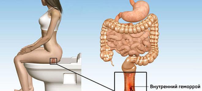 Причины боли в заднем проходе после родов