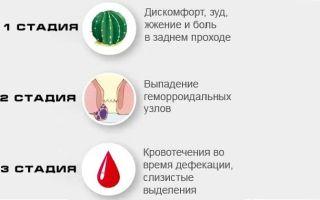 Как лечить геморрой перед родами