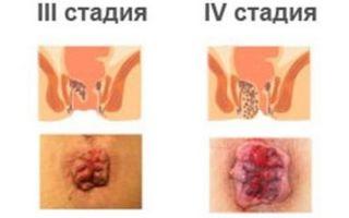 Стадии геморроя и хроническая фаза болезни
