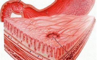 Симптомы эрозия кишечника