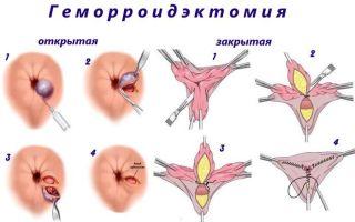 Как проводится геморроидэктомия?