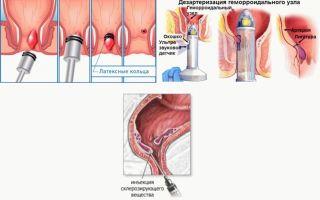 Методы лечения геморроя