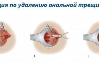 Операция по удалению анальной трещины