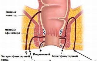 Что такое геморроидальный свищ?