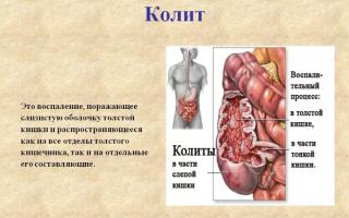 Как лечить колит кишечника у взрослых