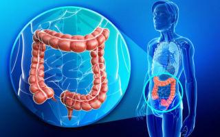 Симптомы и лечение заболеваний толстой кишки