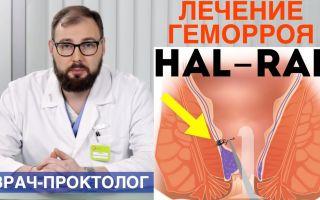 Лечение геморроя методом HAL RAR