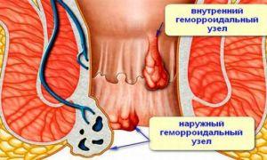 Если воспалился геморроидальный узел