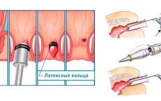 Способы удаления геморроидальных узлов
