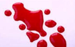 Бывает кровотечение из геморроидальных узлов