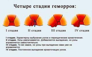 Геморрой на начальной стадии