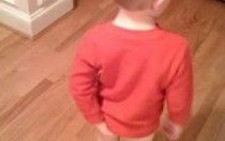 Лечим геморрой у детей