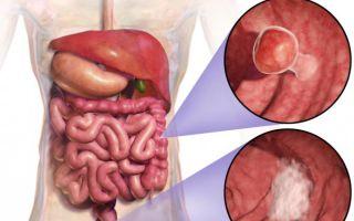 Как человек живет после операции на кишечнике