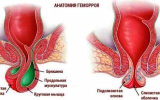 Лечение геморроя с кровотечением