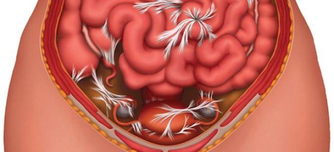 Симптомы спайки кишечника