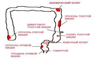 Причины появления крови в кале