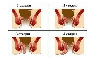 Геморрой 1-4 степени
