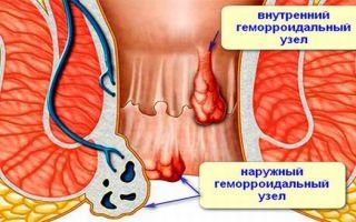 Появились геморроидальные узлы после родов