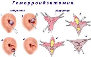 В каких случаях проводится хирургическое лечение геморроя