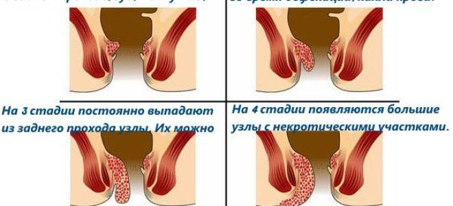 Лечение геморроя при беременности народными средствами