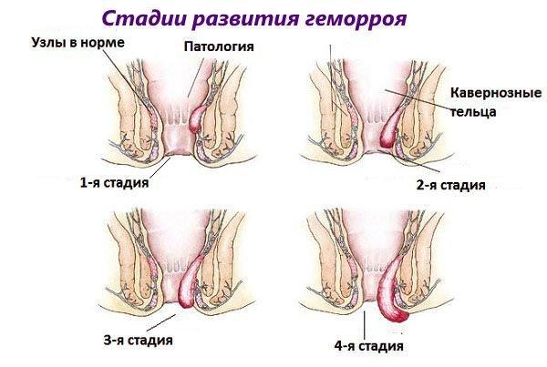 Стадии заболевания прямой кишки