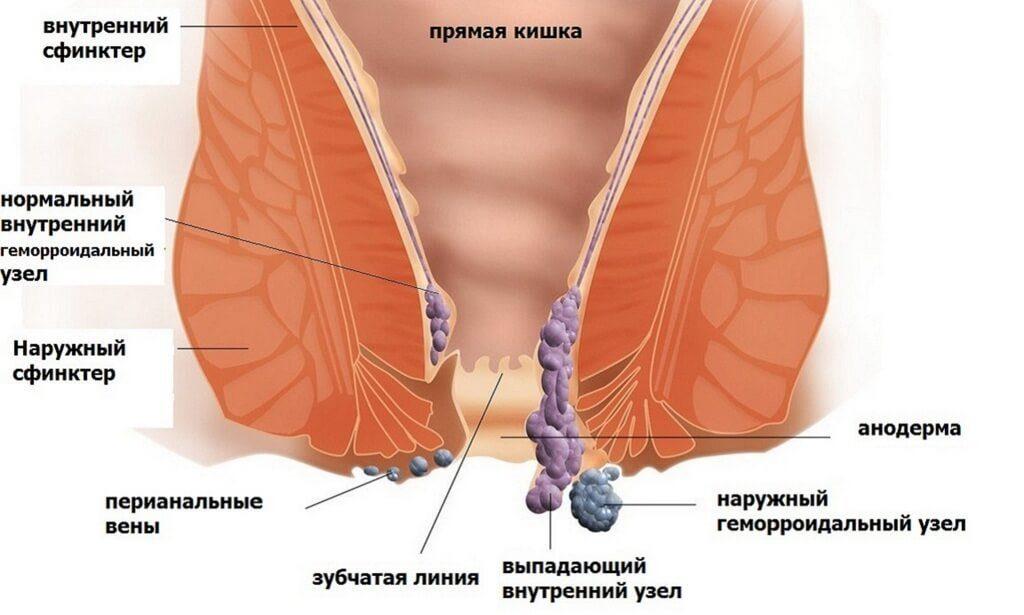 Схема проктологического заболевания