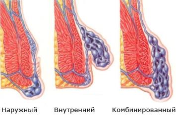 Виды проктологического недуга