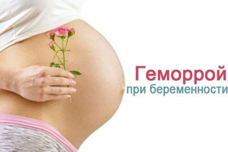 Геморрой при беремености