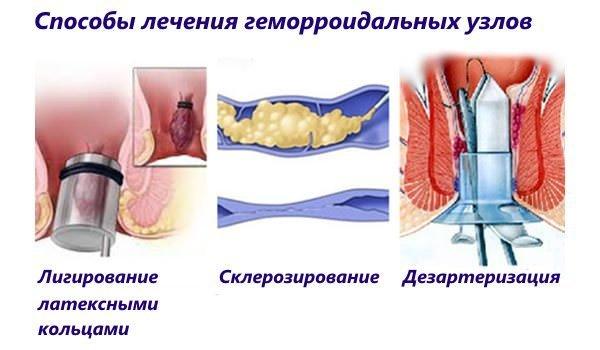 Разновидности операции на геморрой