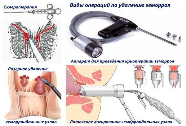 Разновидности хирургического вмешательства