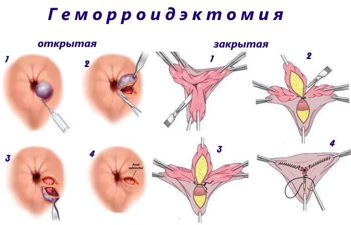 Схема геморроидэктомии