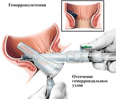 Отсечение геморроидальных узлов