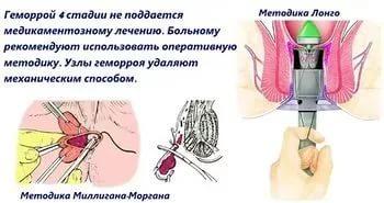 Степплерная геморроидэктомия