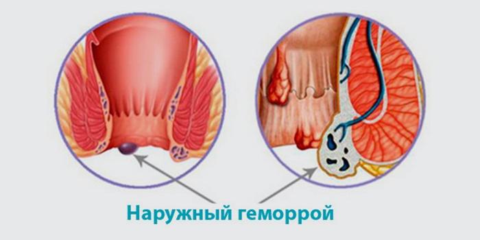 Наружная форма заболевания прямой кишки