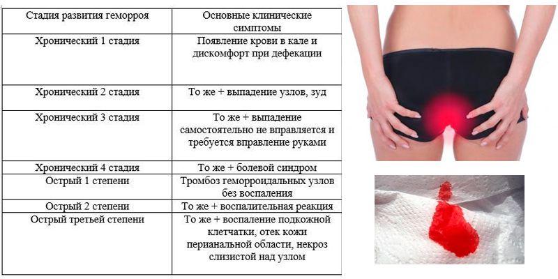 Симптомы деликатного недуга у женщин