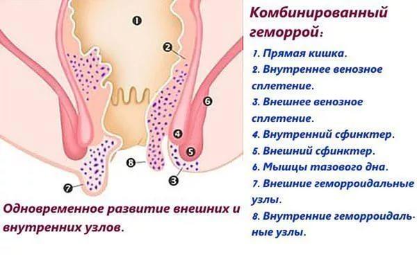 Комбинированная форма проктологического недуга