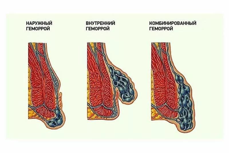Виды проктологического заболевания
