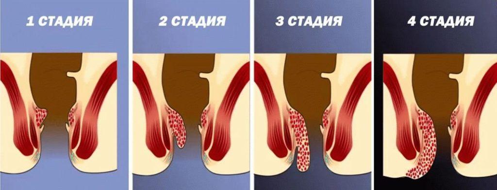 1-4 стадия заболевания