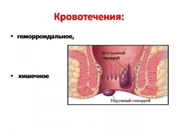 Мази при анальное кровотечение