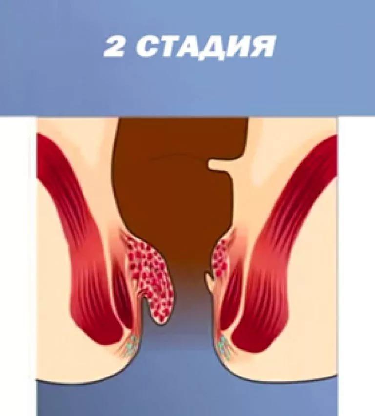 Вторая стадия болезни прямой кишки