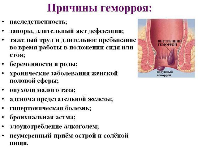 Причины появления проктологического заболевания