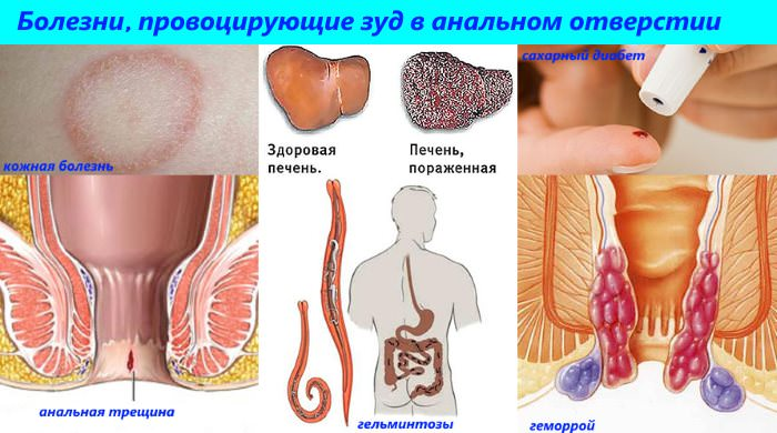 Причины зуда в области ануса