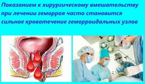Показания к хирургическому вмешательству