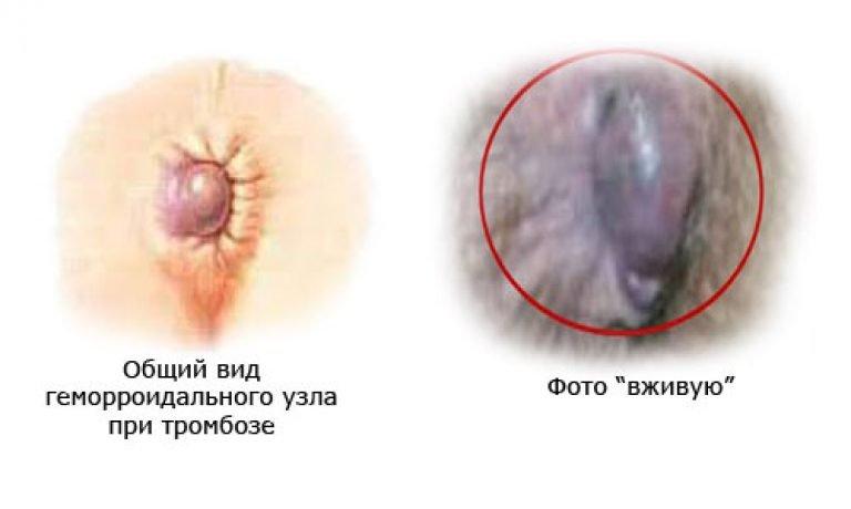 Внешний вид тромбоза