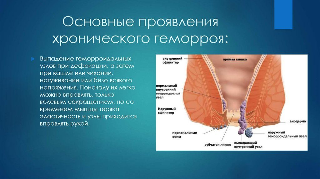 Основные проявления хронического недуга
