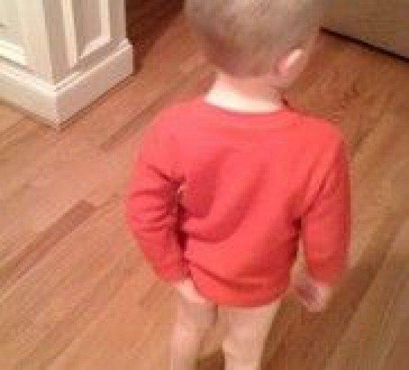 Симптомы геморроя у детей