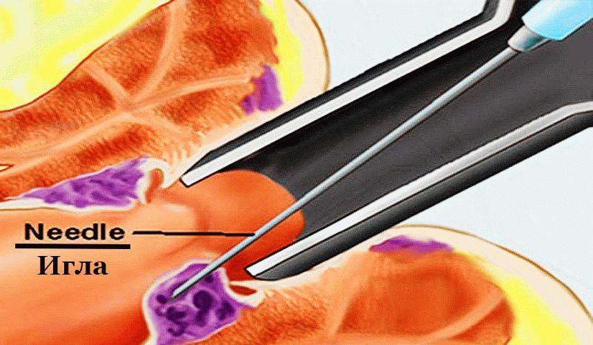 Лечение геморроя склерозированием