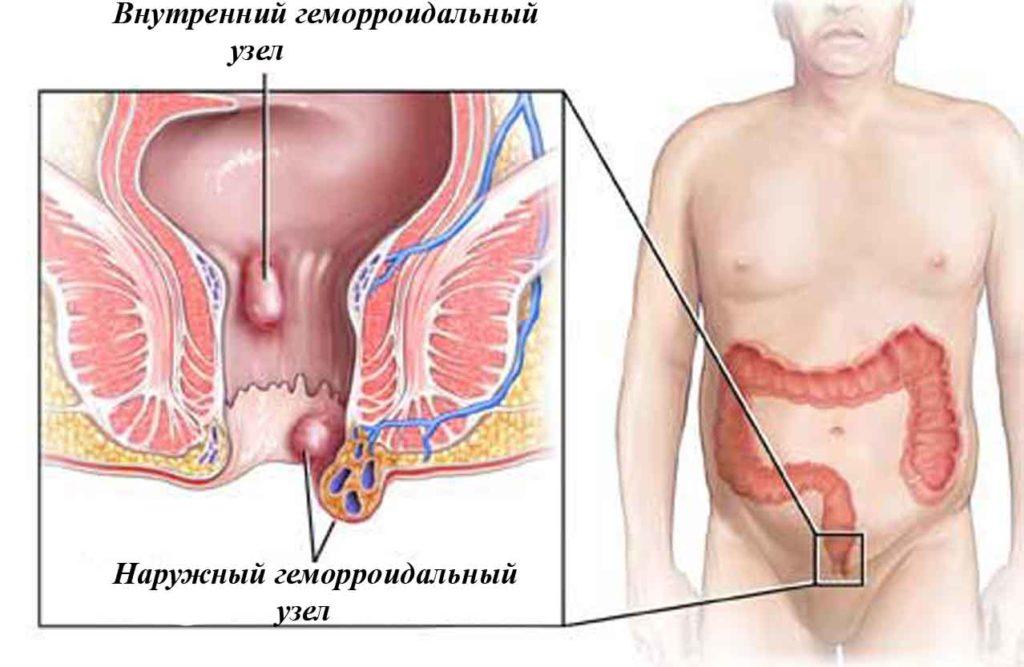 Схема геморроидальных узлов