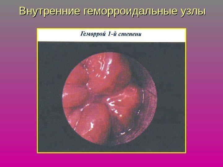 Геморройный узел 1 стадии