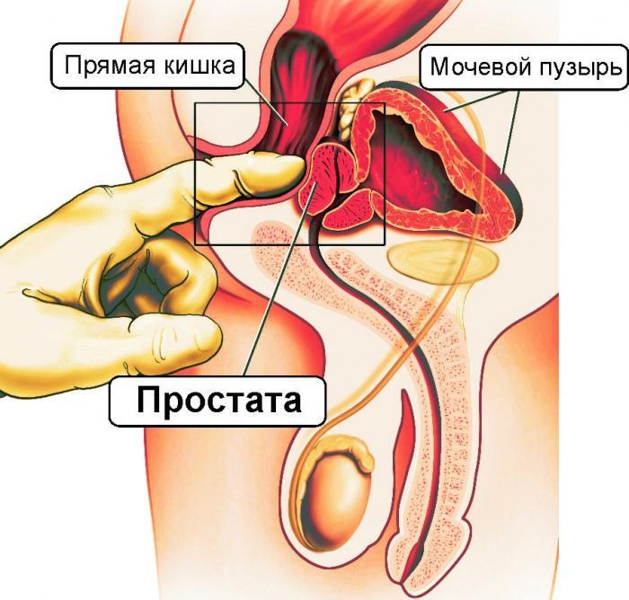 Схема расположения простаты